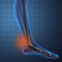 Achilles Tendonitis (now usually called Achilles Tendinopathy)
